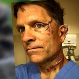Colorado man speaks out after fighting off bear in kitchen