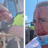 Three NYPD Officers Violently Attacked by BLM Militants Crossing Brooklyn Bridge - Officers Sustained Serious Injuries (VIDEO)