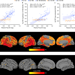 Plasma P-tau181 in Alzheimer's disease: relationship to other biomarkers, differential diagnosis, neuropathology and longitudinal progression to Alzheimer's dementia
