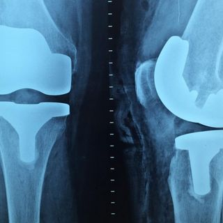 Opioid prescriptions after knee, hip replacement on rise, study finds