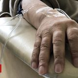 Chemo for cancer patients with Covid 'not a risk'