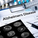 Eating less reduces plaque buildup in Alzheimer's disease
