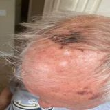 Police: 77-year-old veteran attacked for wearing MAGA hat