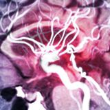 There's Growing Concern COVID-19 Could Spark a Wave of Parkinson's Disease