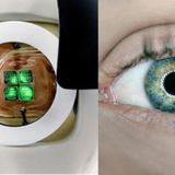 Doctors Build World's First Bionic Eye That Can Make 100% Blind People See