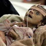 Genocide In Yemen: Media Complicit In US-Saudi War Crimes