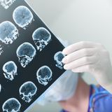 Brain 'microbleeds' after stroke increase risk for recurrence, study finds