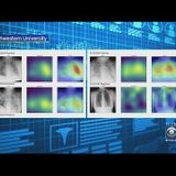 New AI Detects COVID-19 on Chest X-rays with Accuracy and Speed - Crossminds