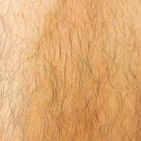 Kids that accidentally grew thick body hair can't find a cure