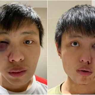 S'porean student punched in London: Attack by 15-year-old was racially motivated, says British court