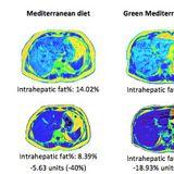 Green Mediterranean diet cuts non-alcoholic fatty liver disease by half