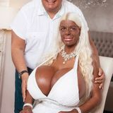 Remember The Woman That Changed Her Skin Through Surgery? Meet Her Husband