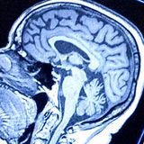Study provides new insight into the neural circuitry underlying irritability and anxiety in youths