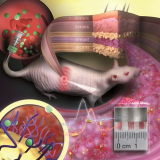 Tattoo made of gold nanoparticles revolutionizes medical diagnostics