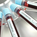 Pa. Researcher 'on Verge of Making Very Significant' Virus Findings Shot to Death