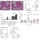IRF5 guides monocytes toward an inflammatory CD11c+ macrophage phenotype and promotes intestinal inflammation
