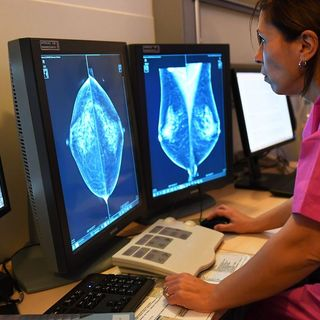 Google just beat humans at spotting breast cancer — but it won't replace them