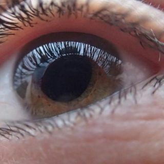 Protein in blood may signal age-related macular degeneration