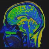 Serious Cases of Brain Damage Are Linked to COVID-19, New Research Shows